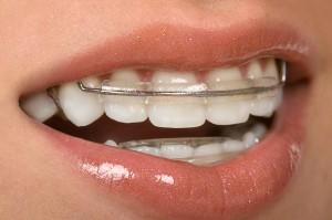 Orthodontic retainers Savannah GA