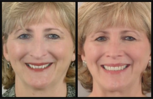 Reverse The Aging Process With A New Smile | Vaught ...