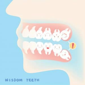Wisdom Teeth Removal Savannah GA