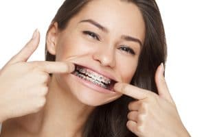 Adult Orthodontics Savannah GA